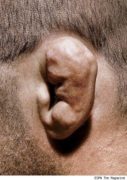 Randy Couture Cauliflower Ear