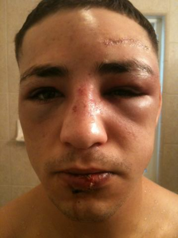 Diego Sanchez Recovering from BJ Penn