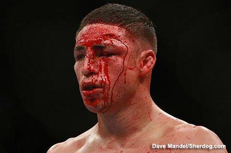 Diego Sanchez UFC 107 cut