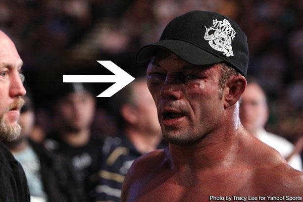 Marcus Davis eye at UFC 118