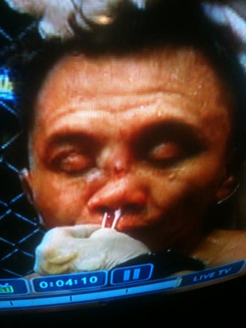Cung Le post UFC 139 2 pic