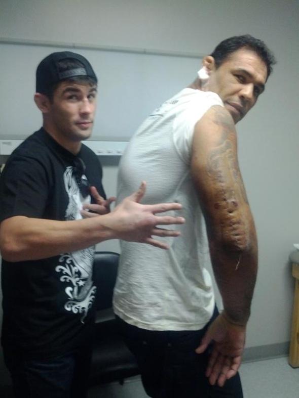 Minotauro Nogueira Post Surgery Arm pic