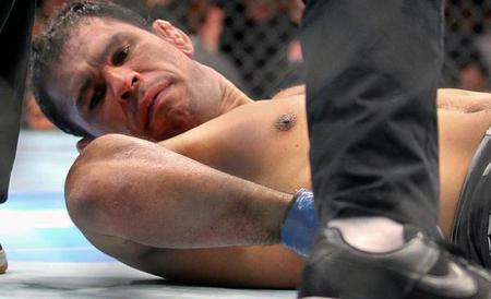 UFC 140 Minotauro Broken Arm 1