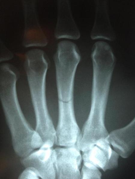 Luke Rockhold broken hand Xray