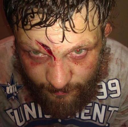 Nelson Post Fight UFC 143 Photo