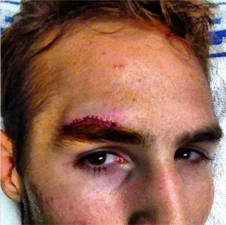 Rory MacDonald cut above eyebrow Penn
